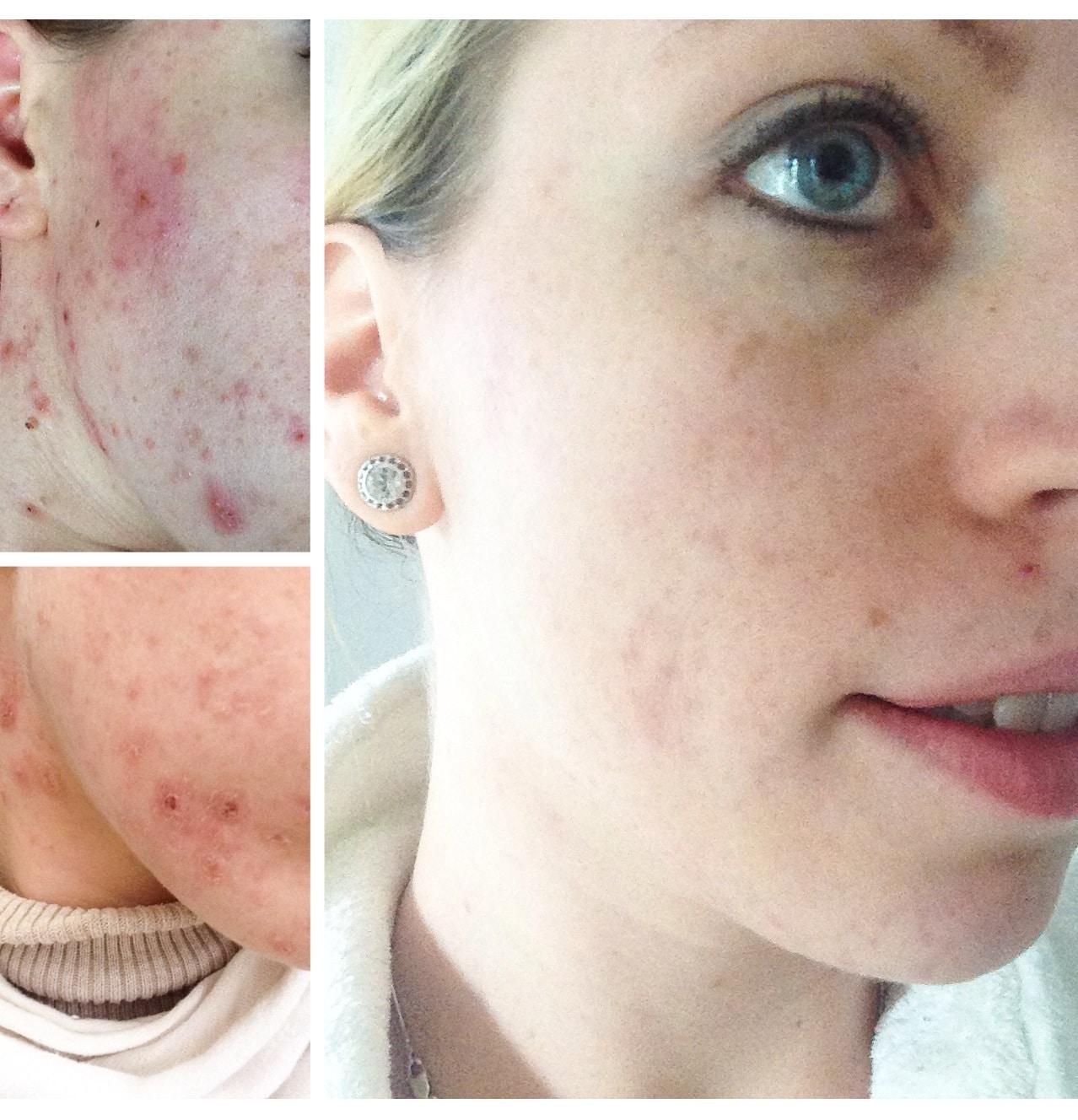 Haut: Akne vorher nachher