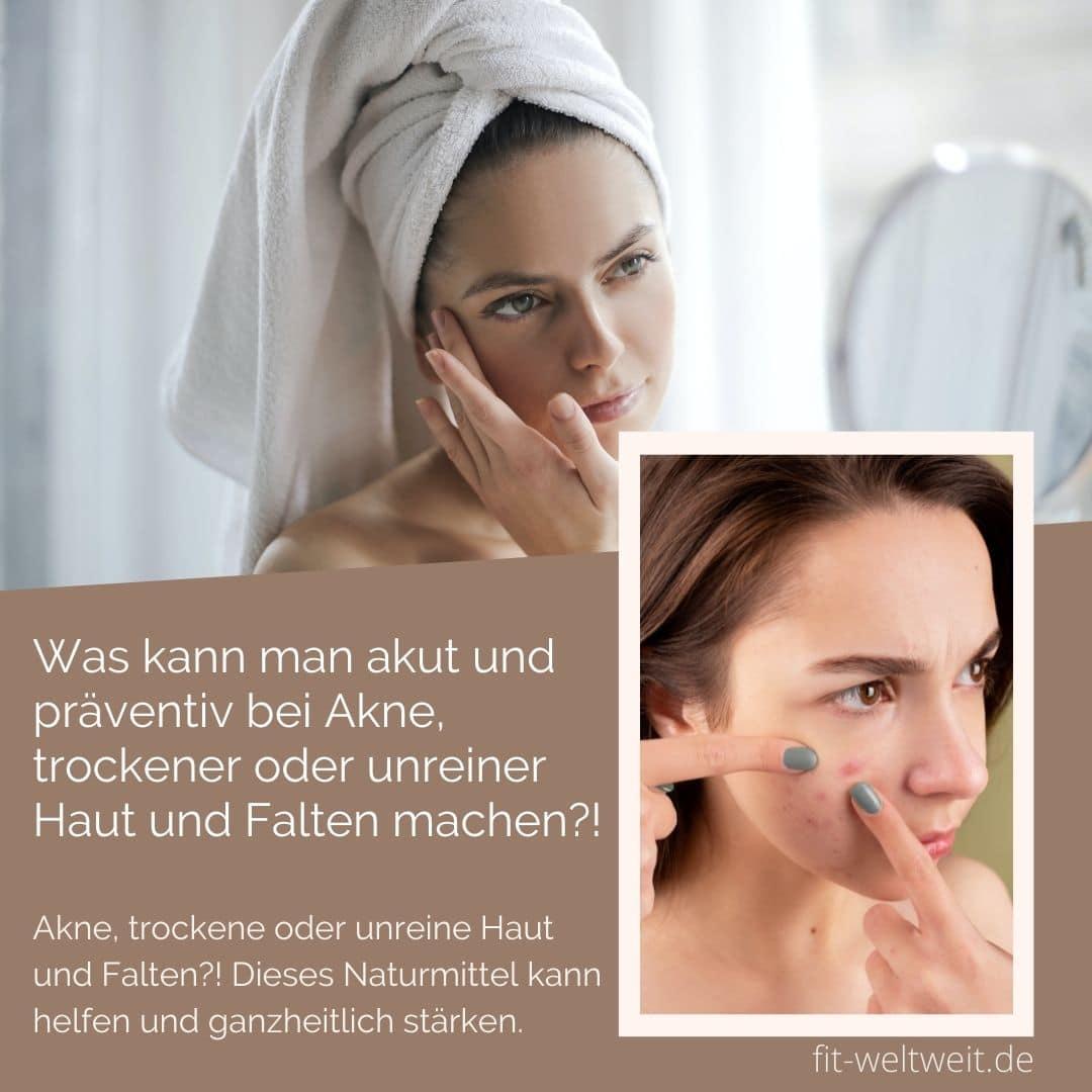 Was kann man akut und präventiv bei Akne, trockener oder unreiner Haut und Falten machen?!